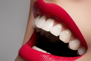 All the Reasons Why Dental Polishing Is Important for Your Oral Health
